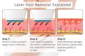 hair removal charleston sc