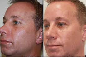 ablative laser before and after