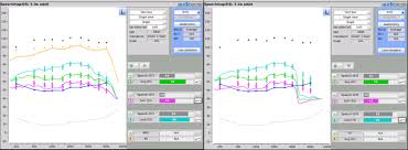 20q Using The Aided Speech Intelligibility Index In Hearing