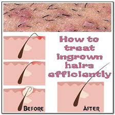 how to remove an infected ingrown hair on face