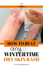 12 Home Remedies to Beat any Wintertime Dry Skin Rash