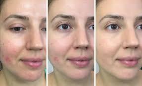 make up for ever step 1 skin equalizer redness correcting primer radiant yellow