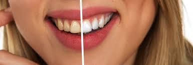 puisqu un joli sourire est toujours plus attirant il est dans la norme de prendre soin de ses dents et par occasion d éviter l apparition de vilaines