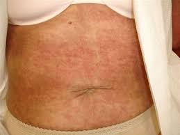 Autoimmune Disease Rash On Stomach — brad.erva-doce.info