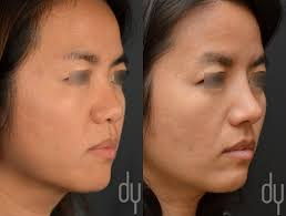 beverly hills rhinoplasty specialist dr donald yoo performed a beverly hills rhinoplasty specialist dr donald yoo performed a primary asian rhinoplasty rib cartilage