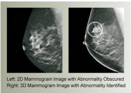 3d tomosynthesis mammography