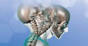 Long muscle of the neck that extends from the mastoid process to the clavicle and sternum. 3 Reasons You May Have A Stiff Neck