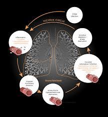 Pathophysiology Bronchiectasis