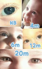 Btdt Eye Color Progression Pics Babycenter