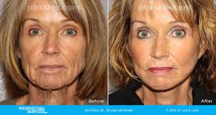 quicklift facelift cost
