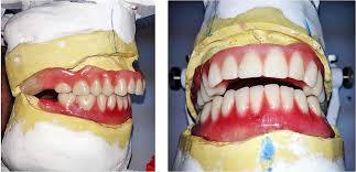 Teeth Setting Class Ii Denture My Dental Technology Notes