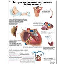 Cardiac Anatomy Chart Common Cardiac Disorders Chart