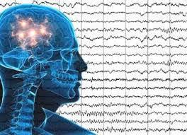Resultado de imagen para El 'marcapasos cerebral' que ralentiza el alzhéimer