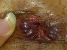 External hemorrhoids साठी इमेज परिणाम