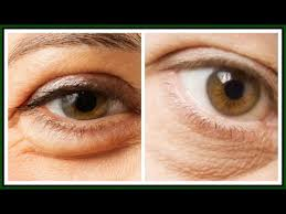 5 WAYS TO GET RID OF PUFFY EYES |SIMPLE HOME REMEDIES FOR PUFFY EYES ...