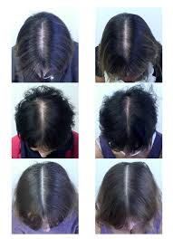 before and after shots of 3 study partints photo courtesy of the journal of cosmetic dermatology though women s hair loss