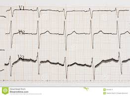 Arrhythmia Stock Image Image Of Heart Graph Chart 30102671