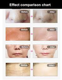 Led Light Therapy Color Chart Led Facial Treatment Photon Mask Pdt Skin Rejuvenation Machine Led Light Therapy Face Beauty Led Light Treatment For Acne Led Light Treatment For Skin