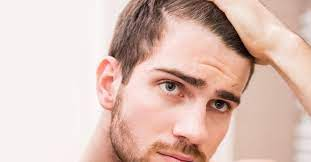 does low testosterone cause hair loss