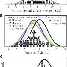 A Head Circumference Hc Standard Deviation Distributions