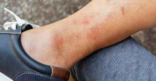 hives vs rash identification