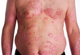 Psoriasis Treatment Pune