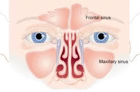 Sinus Chart Sinus Infection Sinusitis Cleveland Clinic