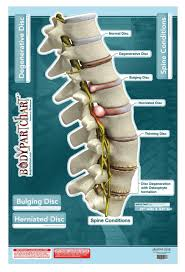 Chiropractic Wall Charts Spine Conditions Sticky Wall Poster