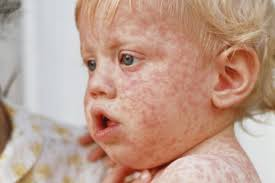 measles rash on a child