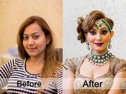 7aaa 7aaa before after