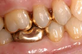 dental onlay gold cast inlays and onlays bozeman mt dr smith