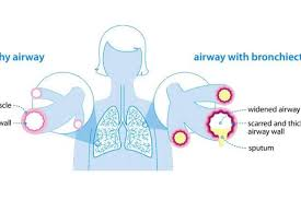 Causes Of Bronchiectasis British Lung Foundation