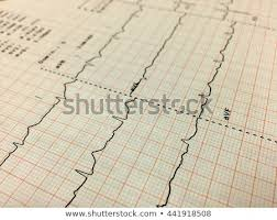 Ekg Graph Paper Background Pattern Selective Stock Photo Edit Now
