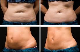 Картинки по запросу озонотерапия для похудения результаты