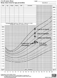 Cdc Down Syndrome Growth Chart Using The Cdc Growth Chart Acomparison Is Made For A 13 5 Y