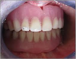 Teeth Setting Characterization Of Complete Denture 11 Case Reports