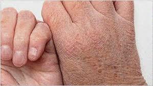 Resultado de imagen para piel seca