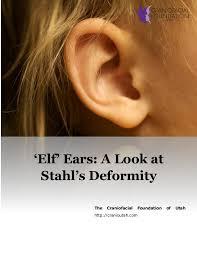 Elf Ears A Look At Stahls Deformity
