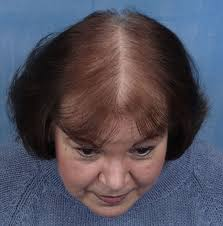 hair loss causes symptoms and how to naturally re baldness