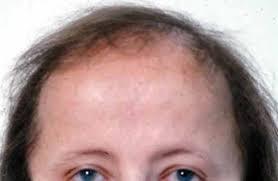 androgenetic alopecia medlineplus genetics
