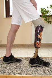 the use of prosthetics are ancient but the one s produced today are quite advanced and sophisticated
