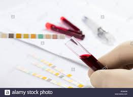 Blood Collection Tubes And Tests Chart Test Tubes With Blood On White Table With Test Chart And
