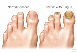 mayo clinic q and a toenail fungus often difficult to eliminate pletely