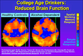 Age Function Reduced College Drinkers Brain