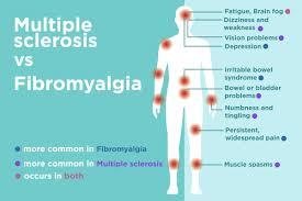 Fibromyalgia Chart Fibromyalgia Vs Multiple Sclerosis Ms Differences In