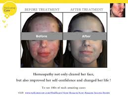 homeopathic remedies for clear skin