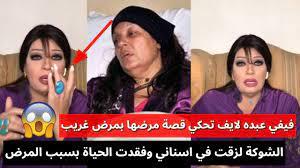 فيفي عبده لايف تحكي قصة مرضها الغريب الشوكة بتلزق في اسناني فقدت الحياة  بسبب مرضي - YouTube