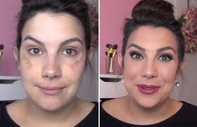 how to hide melasma with makeup