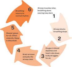What Is Sleep Apnea Healthy Sleep Solutions