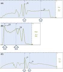 The Fundamentals Of Uroflowmetry Practice Based On